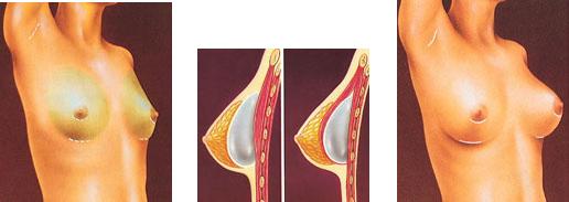 addition-mammaire