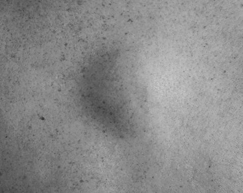 Moles, cysts, lipomas